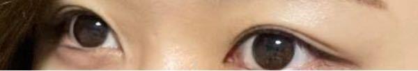 この目は細工なしの天然二重だと思いますか?