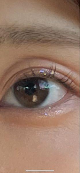 瞼の伸び、たるみについてです 画像の通り瞼が伸びたのかたるんだのか わかりませんが窪んで三重のようになっています。 もう片目は伸びもたるみもないため 二重ですが画像の目だけ瞼が伸びているため 眠そうに見えたり実年齢より上に見られます。 現在20歳でアイプチはしておらず 毎日アイクリームもかかさず塗っているので 原因がよく分かりません。 一体原因はなんなんでしょうか。 またどうしたらこの伸び?たるみを目立たないようにできるでしょうか。