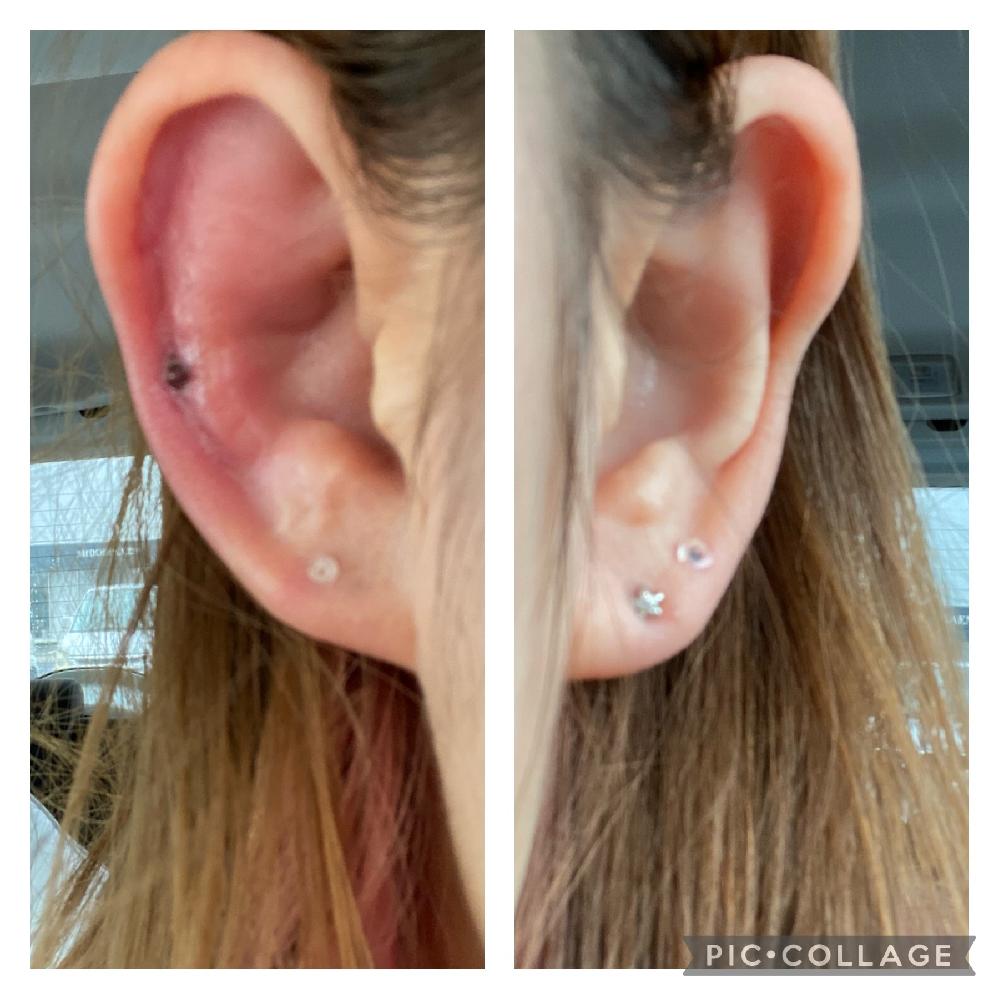 5日前に写真の部分にピアスを開けたのですが、一昨日から腫れてます。(※添付写真※分かりやすいよう開けた右耳と開けてない左耳載せてます)今朝からは耳裏付近の後頭部もズキズキ痛みます。 鎮痛剤を飲んで耐えてますが、これは軟骨を開けたときの症状としてよく起こることですか? 軟骨部分は初めて開けたので経験のある方教えてください。