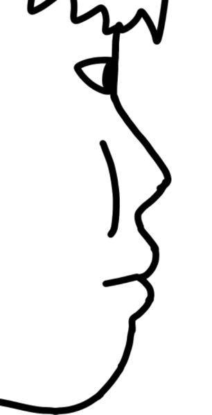 これ自分の横顔なんですが やばいでよね ほっぺのお肉が横から見えるんですがダイエットするとほっぺのお肉無くなるんでしょうか? それに鼻と口が同じくらいの位置になってる という事は自然に口呼吸してしまっていると 言うことでしょうか?