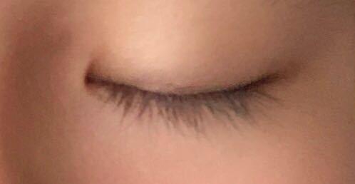 一重ですが、目を瞑った時に目頭に線が入ります。これは、二重になる可能性が高いということでしょうか。(母父共に二重です) 教えてください。