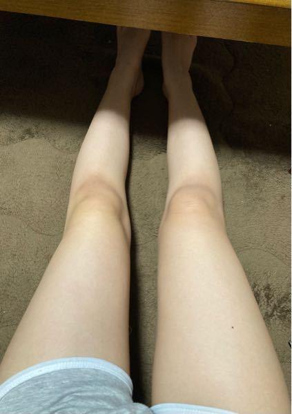 膝の肉が段になっているのが嫌なのですが太もも鍛えれば無くなりますか?(脂肪が原因ですか?) それとこの足は太いと思いますか?