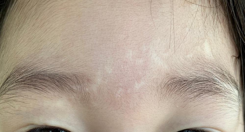 交通事故での顔に傷が残りましたが、 この傷跡は後遺障害等級認められますか? 事故から2年経ち症状固定となり後遺障害等級の申請をしようと思っています。 一本線ではなく2ミリから15ミニほどの傷がたくさんあり瞼の上にも傷があり形が非対称になってしまいました。 場所が目の上から眉間、眉毛、おでこと あまり目立たない場所なので認められるのか心配です まだ小さい子供ですので今後のことを思うと申請していた方がいいのでしょうか。 お力を貸していただきたいです お医者様は9cmの傷があると診断書に記載してくれるそうです