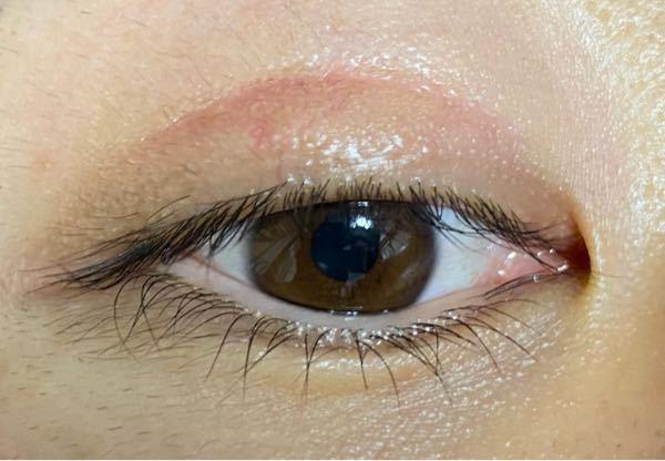 手術失敗なのか教えてください。 二重の整形と眼瞼下垂の修正手術をしましたが、傷口ガタガタしている気がします。 また瞼の幅が驚くほど広く、腫れているような気もします。 もう手術してから5ヶ月近く経ちます。 これは失敗ですか。それとも失敗ではないけど医師の腕が悪く出来が悪い感じですか。 医師は、電気メスで私の瞼を切っていましたが、途中で医師が「あっ」と言って、そのときに部分麻酔しているはずの瞼周辺に激痛が走りました。 私が「痛いです。何かありましたか。」と聞いたところ「手術は順調ですよ」とその医師は答えていました。 それから1ヶ月置きに瞼腫れが引かないと手術したクリニックに話しても「経過は順調です」とか「腫れは引いてきます」と言うばかりで、3ヶ月目くらいからほとんど変わりません。 こんなことってあるのでしょうか。 ちなみに二重手術とかネットで調べるとすぐに出てくるクリニックです。 何でもいいのでアドバイスをお願いします。