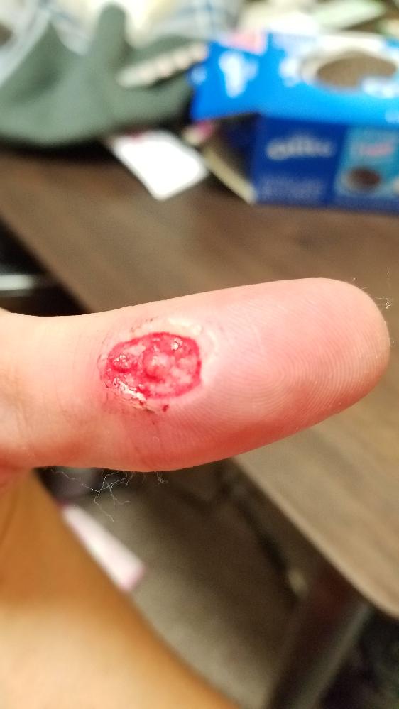 親指にウイルスセイのイボをレーザーで治療してもらいました。真ん中の出っ歯ているのは、正常な皮膚なのでしょうか?
