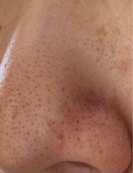 閲覧注意です まだ高校生なのにこんなに鼻の毛穴が汚くて、小鼻の赤みも酷いです… 今までホホバオイル、LUSHのパックマスク、ロゼットの洗顔、酵素洗顔などたくさん試して来ましたがあまり変化はありま...
