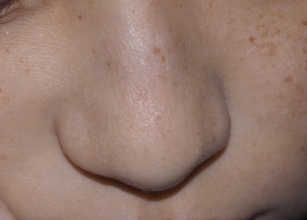 鼻のシワについて。 画像を見て貰えばわかりますが、鼻に縦ジワがあります。 あるのは鼻だけなんです。 近くで見たらシワッシワです。 元々乾燥肌でしっかり保湿はしていますが保湿できていても鼻のシワだ...