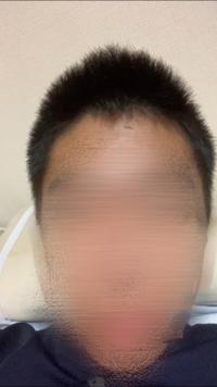 高校生です。垢抜けをしたいのですが、この剛毛な髪質でモテるような髪型にできますか?またはこれを改善することはできますか?校則でワックスなどをつけることはできません。