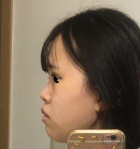 横顔の鼻の平たさに悩んでいます。 鼻というか全体的に顔が平たいのですがこれはどうにもならないですかね。鼻は低くて豚鼻です。口も美人な口ではありません。どこをどうしたらまだ良くなるでしょうか?