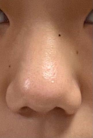 私のコンプレックスはこの鼻と目頭です。 鼻は大っきくて目頭は蒙古襞がすごいです。 顔の形は面長で少し離れ目です。 整形をしたいと思っています。 鼻と目はどのような手術をしたらいいと思いますか? ...