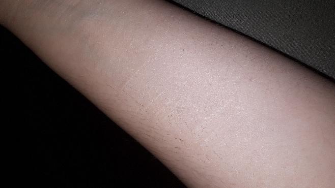 このリスカ跡って目立ちますか? 2年くらい経ってこんな感じです 消えるでしょうか 今は全くやってません 後時々痛くなります 痛さのレベルはその時によって違います 酷いときは痛くて目が覚めます 横になるときなどは圧がかかってる感じの違和感もあります あとは前より皮膚が固くなったようにも感じます 自分がやったことなので自業自得なのは分かってます 痛みなど仕方ないのでしょうか 自宅で出来る痛み、違和感の対処法はありますか? このくらいの傷は隠さないといけませんか? 気になりますか?