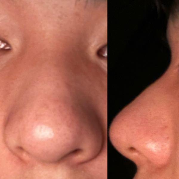 汚い写真で申し訳ないですm(*_ _)m これは何鼻なのでしょうか? 横から見ると高く見えるんですけど、 正面から見るとだんご鼻に見える気がします。 あと、この鼻は鼻筋通ってますか?? 詳しい方...