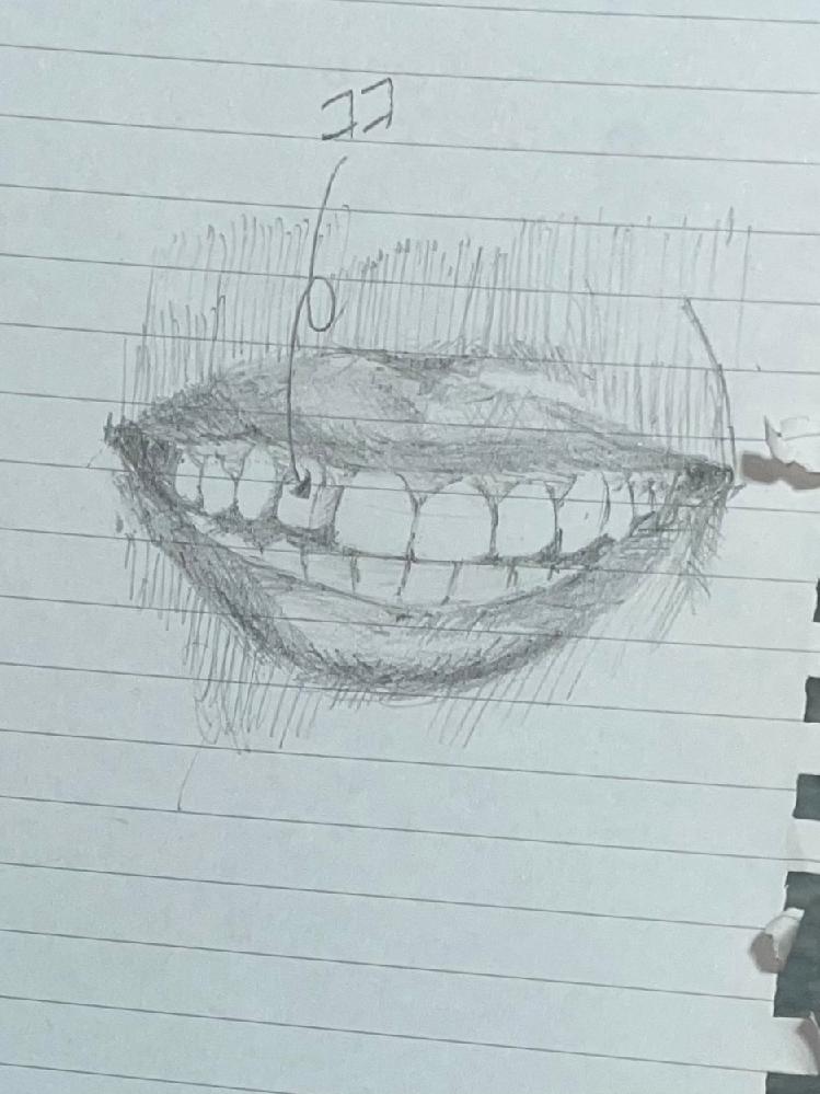 歯並びについてです。 私は、めちゃくちゃ歯並びが悪い訳ではないのですが、近々外国に行くので矯正した方いいのか悩んでいます。 下の下手くそな絵で説明すると、 矢印の歯だけが正面から見るとわからな...