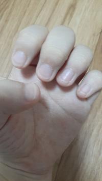 中一女子です。 爪の形がまじで汚いんです。 自力で爪の形を綺麗にする方法はありますか?  親も私も生まれつき爪が横長いです。