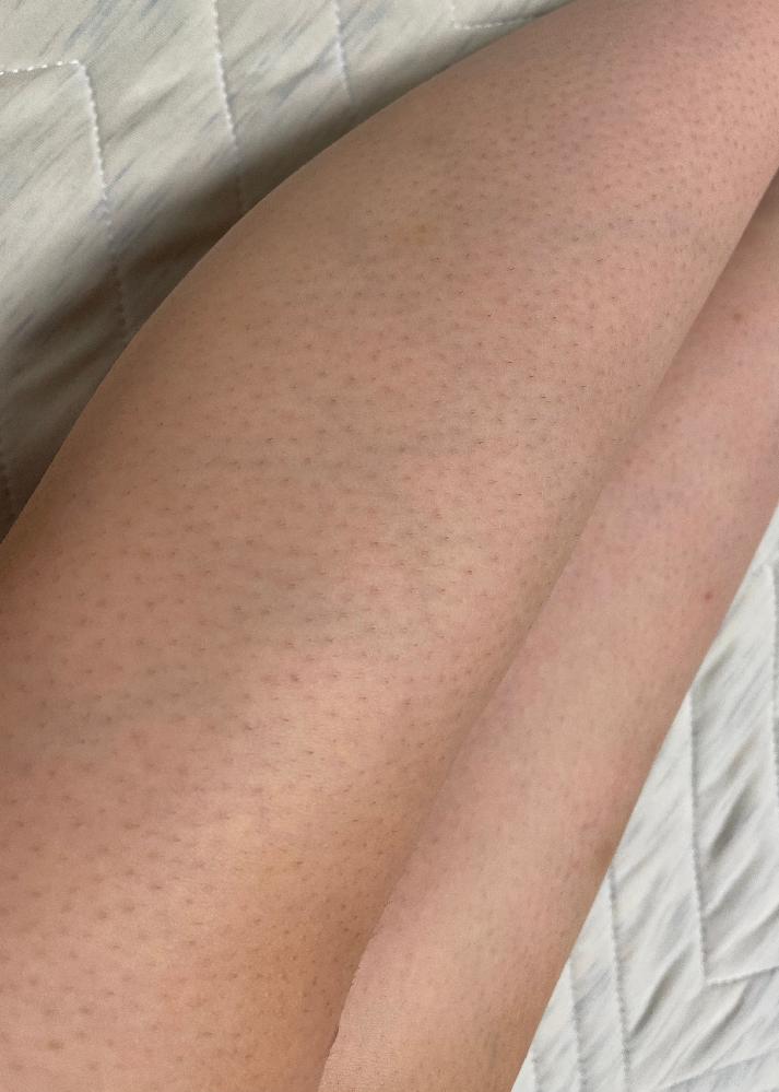 脚に黒いポツポツしたものがあり全然治りません。 汚い写真失礼します。 私の脚のムダ毛は濃く体育等で半パンを履かないといけなく、早く処理したいと剃刀で処理してきました。 あまり知らなかったので保湿や逆剃りをしてしまい埋毛や黒いぽつぽつが脚全体にあります。 今は保湿をしたりしていますが、変わる気配が全然ありません。 こんな脚を改善するにはどうすればいいでしょうか? 綺麗な脚になって短いスカートなどを履きたいです。