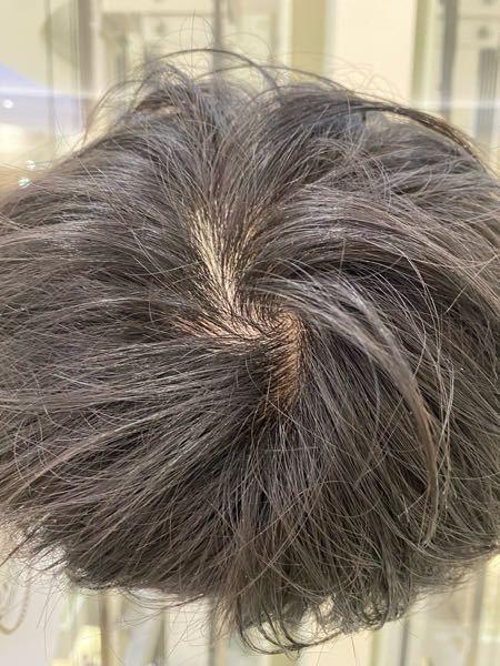 これってハゲてますか? 髪細めです