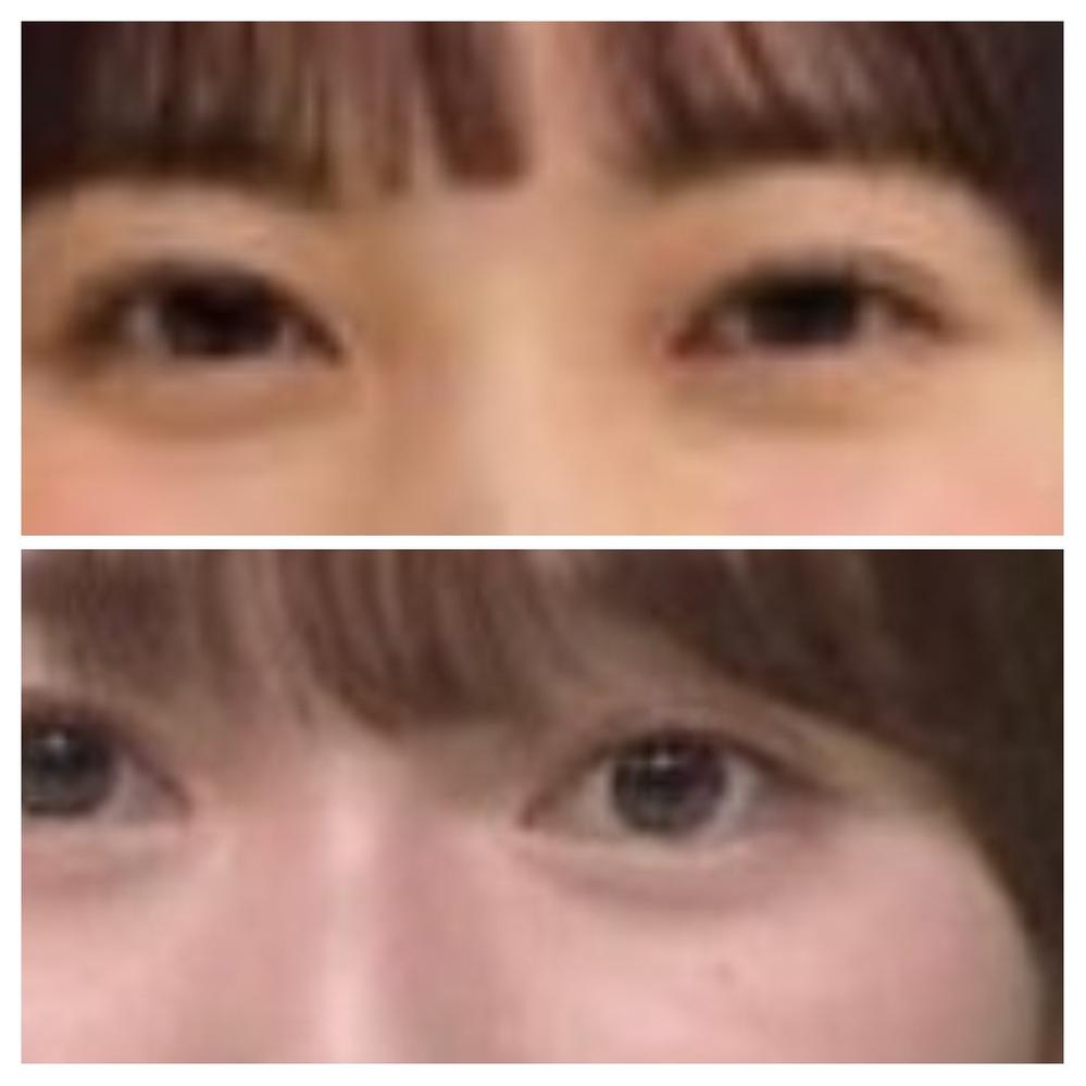 坂道パーツクイズ其の513 画像の現役または元坂道メンバーは 上下それぞれに誰でしょう?