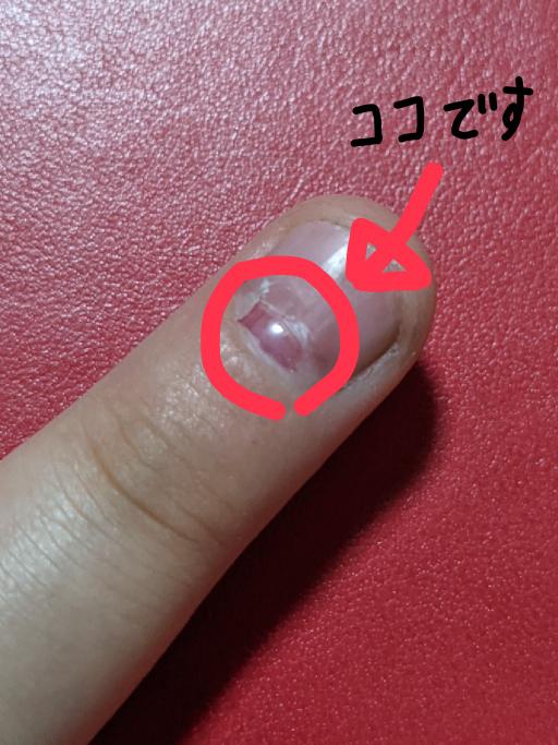 爪が剥がれてしまいました… これは元に戻るのでしょうか…?特に何もしなければ痛みはありません。 汚い爪ですみません