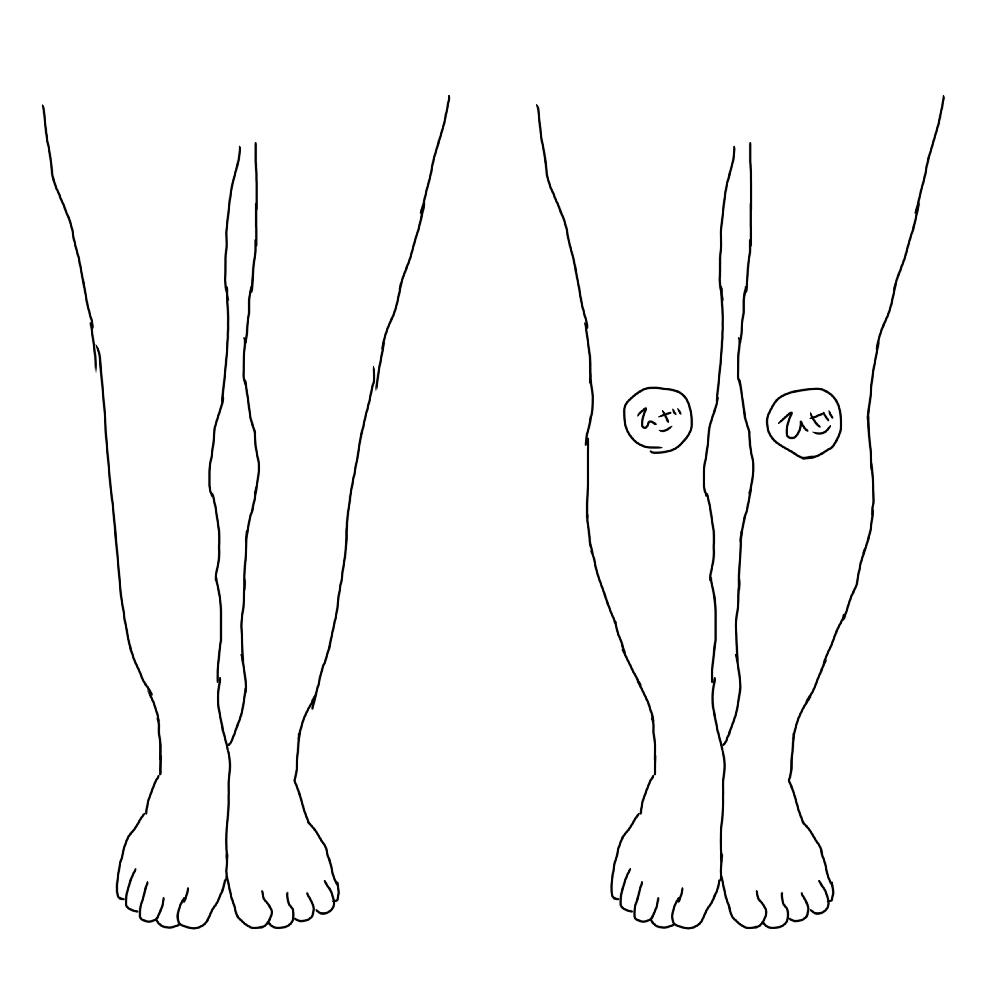 写真の右が今の私の足なんですけどふくらはぎの部分がまっすぐじゃなくて曲線のように正面から見ても出てきてしまいます。最近脚トレを始めたのですがこのふくらはぎだけは改善されなくて、この足は治りますか? 骨格とかの問題ですか?