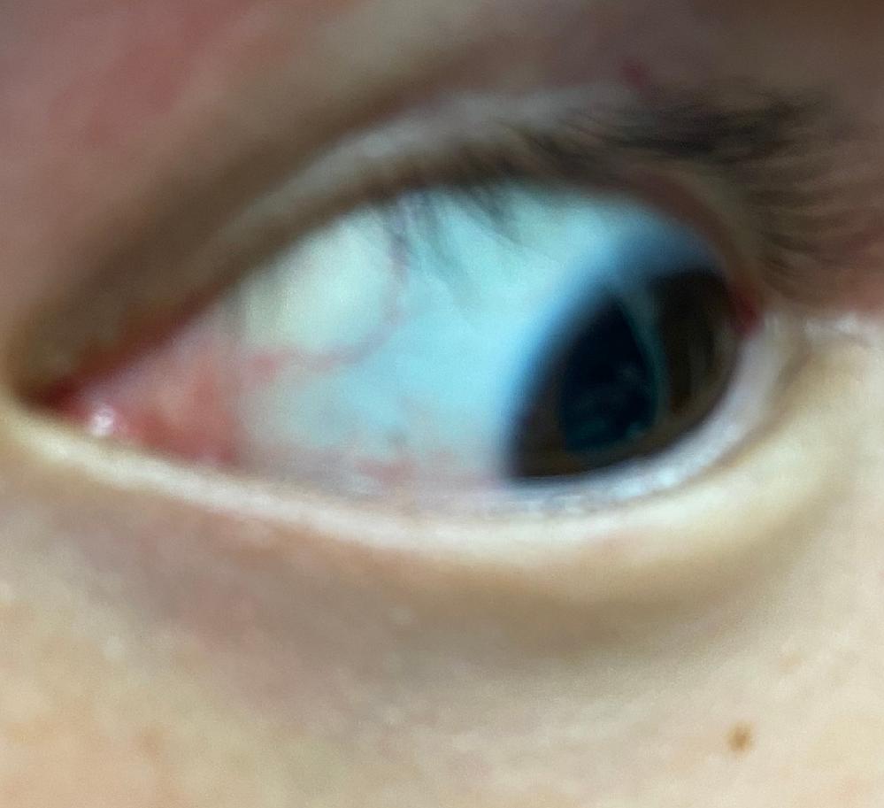 画像のように左目の右上に円形(?)に充血しているのですが、何かの病気でしょうか?