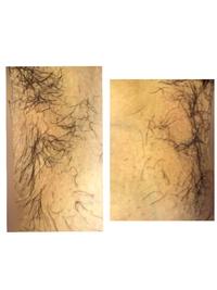 医療脱毛 Iラインの照射漏れについて。 ※閲覧の際にはご注意ください。実際のお写真ございます。 熱破壊式を利用した医療脱毛に通いはじめました。1ヶ月前に初回の施術を受けたのですが、日にちが経っても抜けない部分があったため問い合わせたところ、当て漏れではありませんとの説明を受けました。    以下の写真は、1枚目が向かって右側が鼠蹊部、2枚目が向かって左側が鼠蹊部を写した、照射1ヶ月後のI...