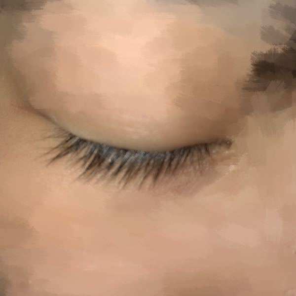 写真のように目をつぶってもまつ毛の生え際が見えない瞼をしています。 埋没しようと思っているのですが幅狭すぎない平行二重って出来るのでしょうか? あまりにも瞼が伸びているとまつ毛にまぶたが乗っかっ...