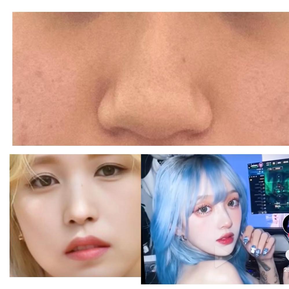 上のような鼻を下の二つのような鼻にするにはどのような施術が必要でしょうか? ざっくりでも細かくでもいいので教えて下さい、、できれば値段も教えて下さると有難いです、、 整形