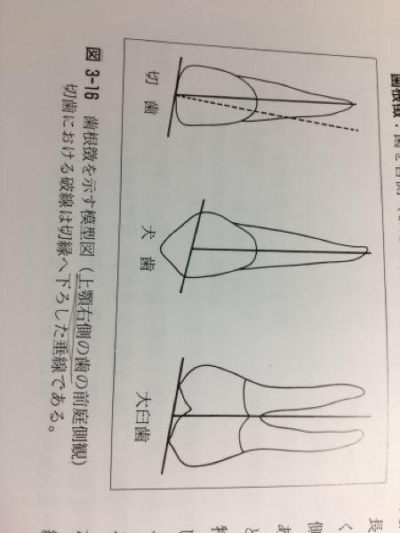 切縁の中点から垂線を立てると、右側の歯では根は垂線の右側に、左側の端では左側に位置するものである と書いてありました。しかし下の図は右側の歯なのに根は垂線の左側になっています。おかしくないですか