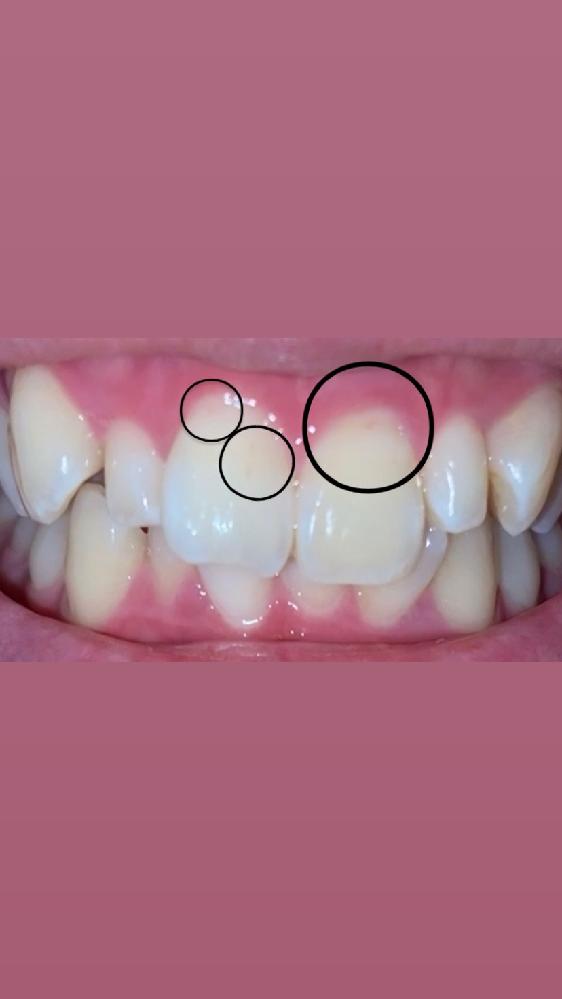 歯の汚れついてです。写真も載せるので無理な方は見ないようにお願いいたします汗 写真とても見にくいです。画面の明るさを最大にしないと見えないかもです汗 数ヶ月前から前歯周辺の根っこにピンクい汚れ...