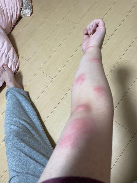 夜中に痒みで起きたらこのようなことになってました。ダニや虫刺されなのでしょうか?それとも蕁麻疹などアレルギーによるものなのでしょうか?