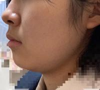 【至急】高校生です。159cm47㌔くらいなのですが、私は顔に脂肪が付きやすい体質なんでしょうか。それとも普通ですか?