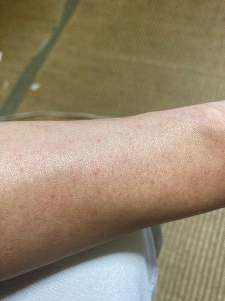 昨日、会社に行ってから左の手の甲から二の腕までの場所にに赤い点々がある事に気付きました。 これはアレルギーの反応が出ているんでしょうか? 痒くもないし、痛くもないです。 皮膚科に行きましたが、 ...