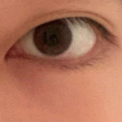 この目って目頭切開できると思いますか?