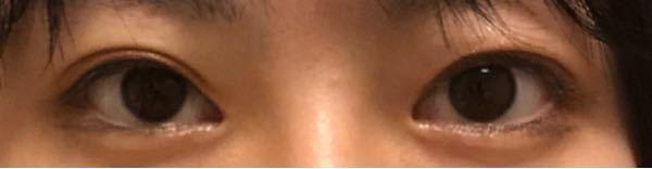 目の幅が左右不対象なのと目に光?が入らないんですがどうしたらいいですか? それから目付きがすごく悪いです。上目遣いとかすると目がキツくなります。。 元々二重ですがクイっと目を開くとなぜが二重幅埋もれます笑