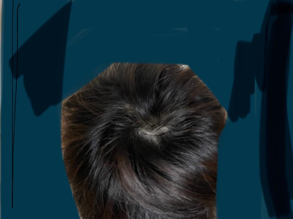 リアップでこの髪の質など直せますか?