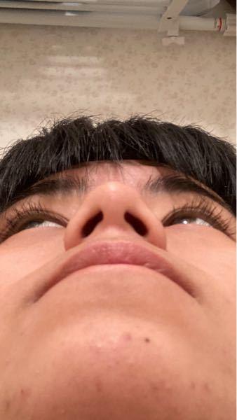 私の鼻はなぜでかいんですか?整形するならどこを整形すればいいですか?※整形しなくていいとかは遠慮お願いします。