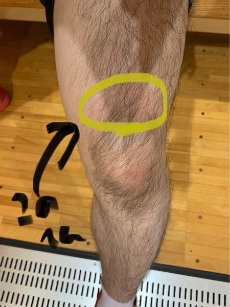 膝の上の辺りが痛いです。 伸ばすのは大丈夫なのですが、90度以上曲げられません。 さっきなったばかりなので、とりあえず冷やして様子を見ています。 この辺のことに詳しい方が居たら教えてください 整形