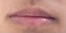 この唇ってブスですか? 正直に答えてください