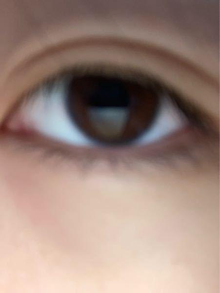 この目、整形っぽいですか?