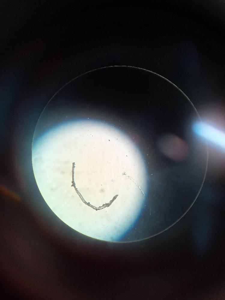 理科の授業で池の水からプランクトンを観察した際に、こんな黒い細長いものを見つけたのですが何て名前の生物ですか?因みに倍率は400×です。