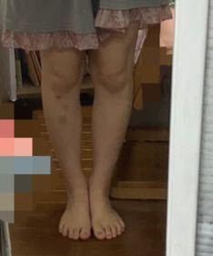 私の脚は客観的に見てかなり太いでしょうか、太いでしょうか、普通でしょうか。 正直に答えて頂けると幸いです。 また、膝丈スカートは履いても大丈夫でしょうか。 155.5センチ48.8キロです。