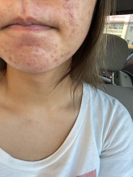 汚肌 白ニキビ 閲覧注意 アドバイスください 19歳女子です。 自分では脂性肌だと思っています。マスクをつけていると顎の部分がかなり油っぽくなります。 食生活などでは揚げ物やお菓子は食べていません。 洗顔も変えて、デュオやピーリングを使っているのですが一向に良くなりません。。 白ニキビとニキビ跡、赤みが目立ちます。。 白ニキビにはピーリングが良いということで使っていますがあまりよくなりません。普通に翌日に白ニキビできます。 ニキビができるのは、あごと、頬の表面でおでこには全くできません。 スキンケア方法は 主にロゼット洗顔パスタ青のアクネケアを使っています。 朝→洗顔パスタ青、ハトムギ、アロエジェル 出かける前にANESSAの日焼け止め 日焼け止めを塗った後に少し赤みが出ます。ヒリヒリとまではいきませんが、、 敏感肌なのでしょうか? その割には血みどろピーリングをしてもあまり痛い!とはならず10分間つけたままで大丈夫です。 昼はジムの後に洗顔して日焼け止め 夜はデュオの黒、洗顔パスタ、ハトムギ化粧水、アロエジェル、保湿してます。 夜は酒麹パックしたり、チョイのパック、週に一回程度でジオーディナリーの血みどろピーリングしています。ばらばらです。 今、書き出したところ昼のジムの後に保湿をしていませんでしたのでしようと思います。 よろしくお願いします。