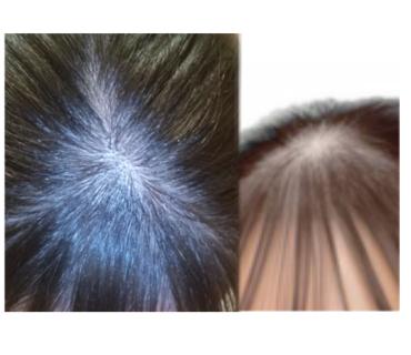 前髪と後ろ髪の境目?の所がハゲてけ悩んでいます。女子中学生です 読んでくれてありがとうございます! 汚いですが、写真通り少し?てっぺんがハゲてます(TT)写真だと分かりずらいかもしれないです 髪の毛を結ぶ時も力強く結んでいる訳でもないのに気づいたらこうなっていました、 これって治りますか、?もし治るならどうすれば治りますか、?教えて頂ければ嬉しいです!! (TT)