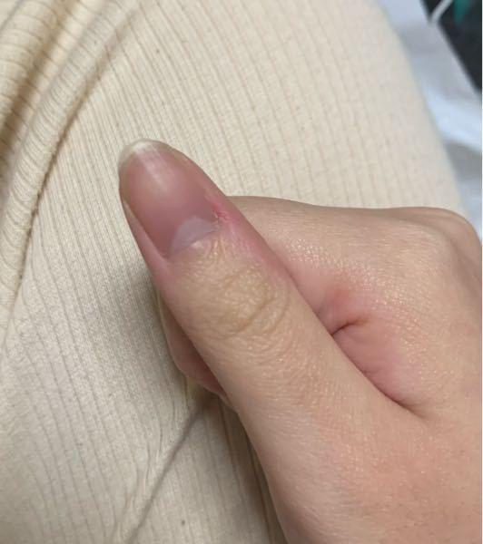 この爪の形って変ですか?
