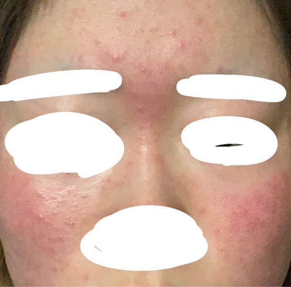 画像閲覧注意 甘いものを食べたら(寝て起きたら)必ずこうなるんですが、アレルギーなんですかね、、?