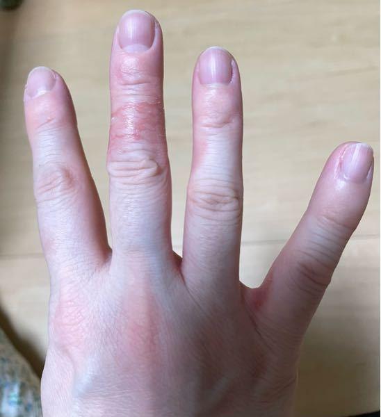 優しい言葉で教えて下さい。 汚い指ですみません。 中指の関節と指のまたがかぶれて治りません。 主婦湿疹でしょうか? リンデロンを寝る前に塗っていますが、朝にはマシになるものの夜にはまた悪化の繰り...