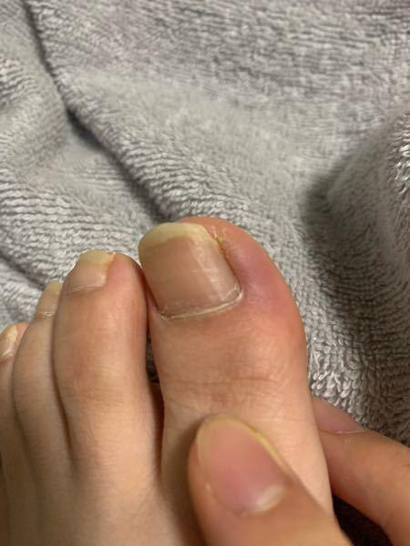 汚くてごめんなさい。 3日前くらいから親指のとこが痛いです。 紫色になっていて触ると痛みが出ます。 これはなんでしょうか。そして薬とか塗った方がいいんでしょうか