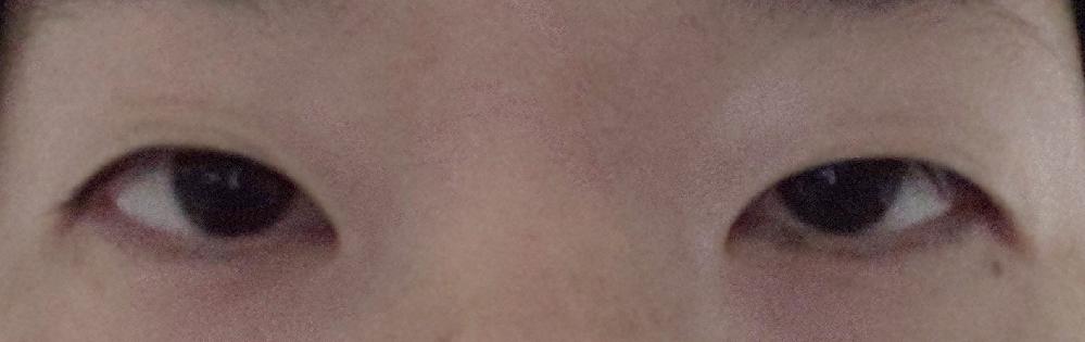 二重整形についての質問です。 私は元々 目つきの悪い がっつり一重だったため、4年前と5年前にそれぞれ違うクリニックで埋没法を行いました。 しかし、どちらも数ヶ月で二重が緩んでしまい、さらに左目の方が緩みが酷く、今は左右差が出ている状況になっています。 日常生活で糸が緩む心配をしたくない、何度も手術を行って瞼にダメージを与えたくないため 切開法を考えて、インスタで有名なドクターのいるクリニックでカウンセリングを受けました。 ドクターは 「 前回の埋没法で右だけにシワが出来ているため、新しくラインを作ってもキレイな形に出来ない可能性がある。もし上手くいかなかった時に切開法だと修正が出来ないのでリスクが高い。 まぶたの脂肪が厚いので、それを取って少しだけ切ってから埋没法にした方がいい。 好きなラインの選択は出来ない。右側の癖の付いてしまった部分より下にラインを作るしかない。」 と言われました。 埋没法 = 取れるもの というイメージがあったため、その件について尋ねると 「 1年ラインが持てば、以降は取れることは無い。1年保証があるので、それ以内に取れたらまた手術を受けることが出来る。絶対とは言えないが、あなたのまぶたの問題に合ったやり方をするのでよっぽど取れることは無い。」との事でした。 埋没法はいつか取れるという認識のため、本当にずっと二重が保てるのか半信半疑なのとトータル50万円近くかかるため、やるならこの手術で最後にしたいという思いがあり迷っています。 ドクターの診断を信じて手術した方がいいのか、他院で切開法を考えた方がいいのか 皆さまの意見を参考にしたいです。 よろしくお願いいたします。