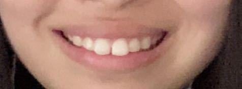 口を開けて笑った時の口の形が気持ち悪いです。この写真は私です。出っ歯でなのもあるし、口角があまり上がってなくて、全体的に太ってるわけではないのに顔の肉だけ異常に多いです。 笑顔が可愛い女の子になりたいです;_; なにか対処法教えてください!