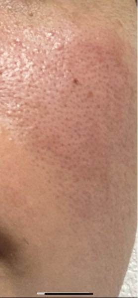 24歳男です。オイリー肌で毛穴が開きがちなのですが汚いですよね?みなさんが思う汚さレベル10段階で教えて欲しいです。画像は頬の画像です